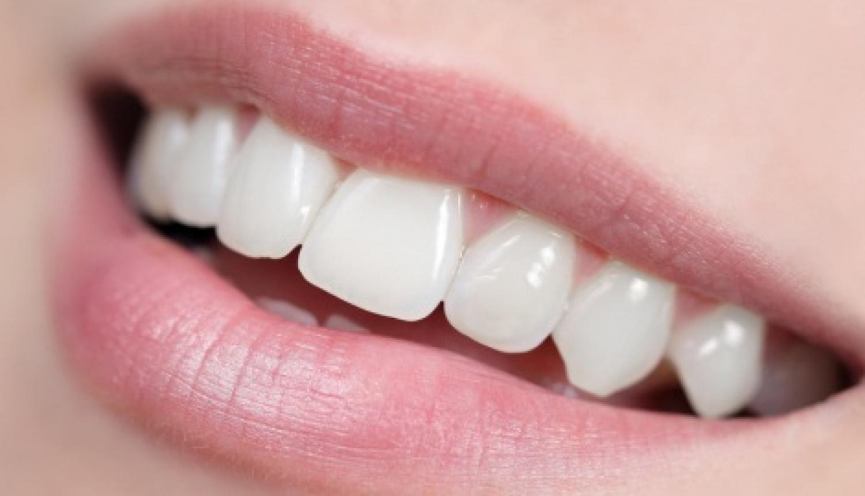 Astuces-naturelles-pour-des-dents-blanches